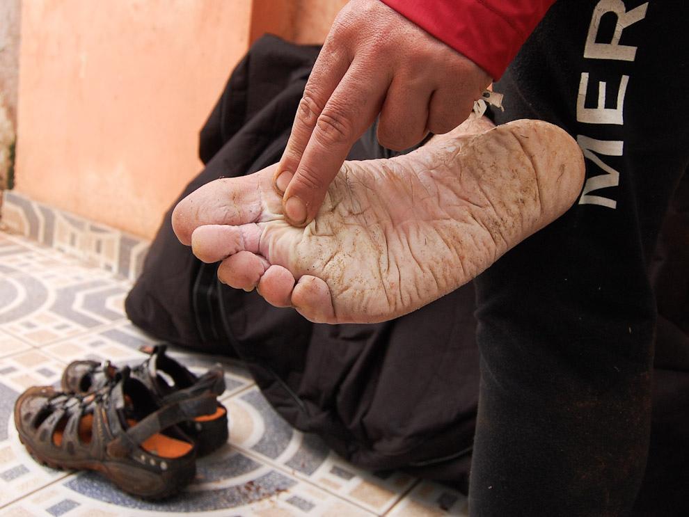 El famoso pié de atleta, producto de la permanencia en la humedad, esta degradación de la piel es una de las principales preocupaciones. (Elton Núñez - Ciudad del Este, Paraguay)
